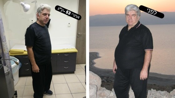 ירידה במשקל ללא ניתוח בריאטרי